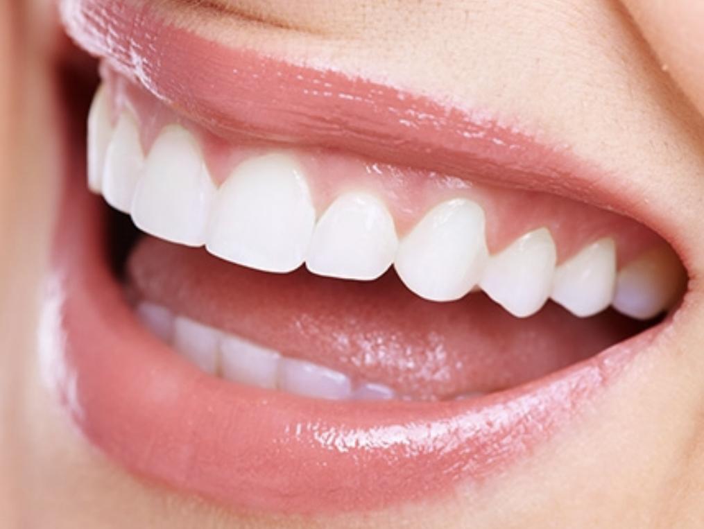 銀歯入れ替えキャンペーン